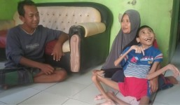 Inilah Potret Iqbal Maulana Anak Penderita Gizi Buruk di Pangandaran